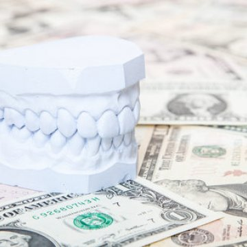 Why is Dental Care Cheaper in Turkey?