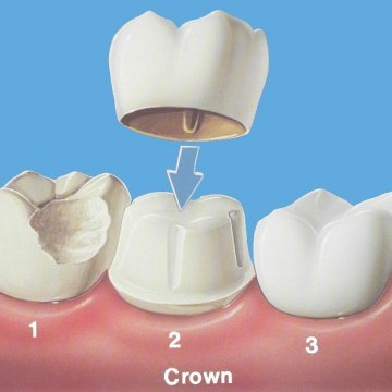 What is the Difference between Emax Crowns and Zirconium Crowns?