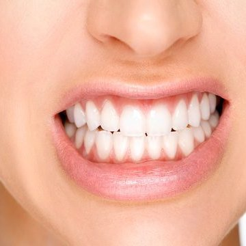 Teeth Grinding - Bruxism Treatment