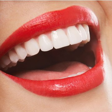 Dental Veneers Abroad