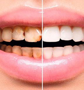 How to Fix Stained or Discoloured Teeth
