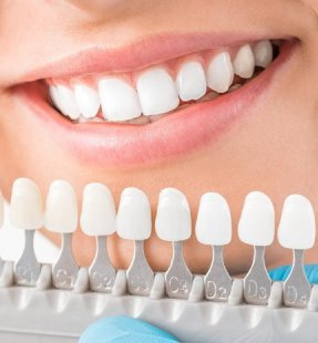 How to Choose Your Teeth Colour?