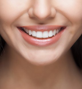 What is the Difference between Dental Crowns and Dental Veneers?