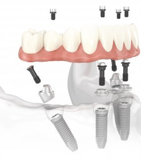 ALL ON 4  DENTAL IMPLANTS Turkey