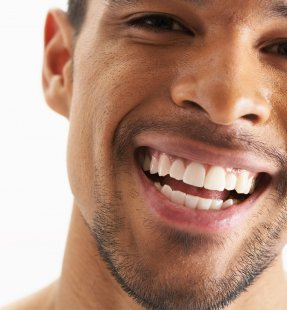 How to Fix Misshapen Teeth