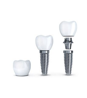 DENTAL IMPLANTS Turkey