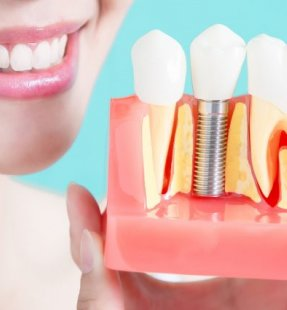 Which Dental Implant Brand Should I Choose